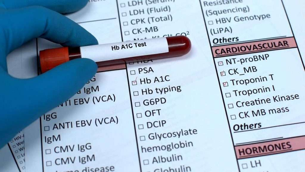 Hemoglobin A1C Test: What it Means to You